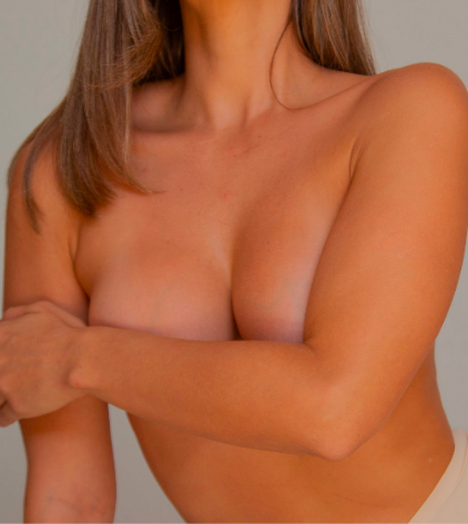 Breast Aug with Fat Transfer